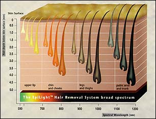 EpiLight broad spectrum for treating all hair colors from the entire body
